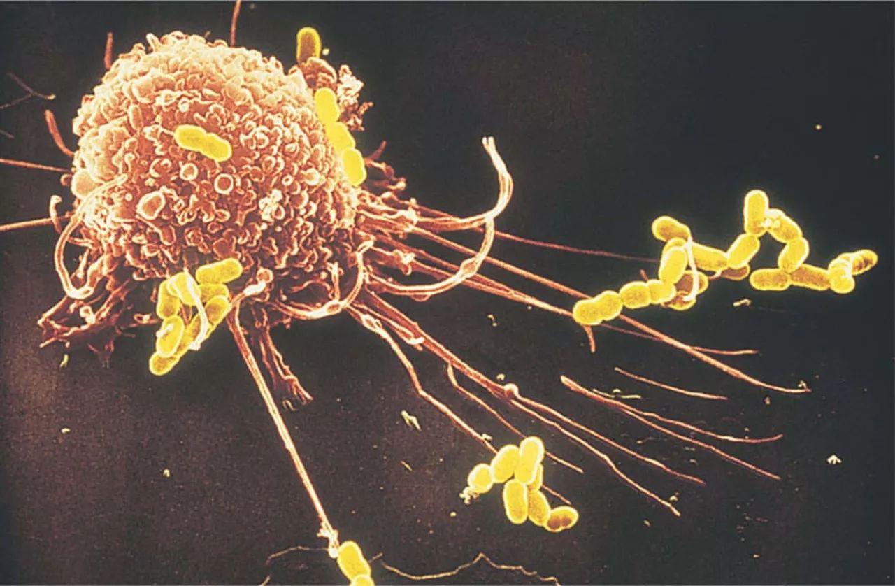 《自然》子刊:无语了,科学家发现癌症在超早期就会转移,而且这一过程还是巨噬细胞精心策划的   科学大发现