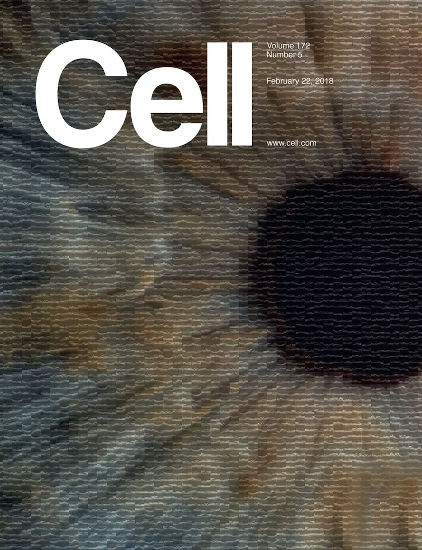 《细胞》重磅:中国科学家研发的AI影像诊断系统首登顶级期刊,可诊断眼病和肺炎两大类疾病,准确性匹敌顶尖医生 | 科学大发现